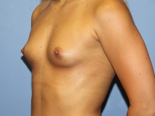 Breast augmentation oblique Before