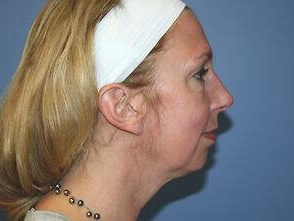 Facial Implant - Chin Before