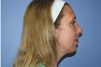 Facial Implant - Chin After