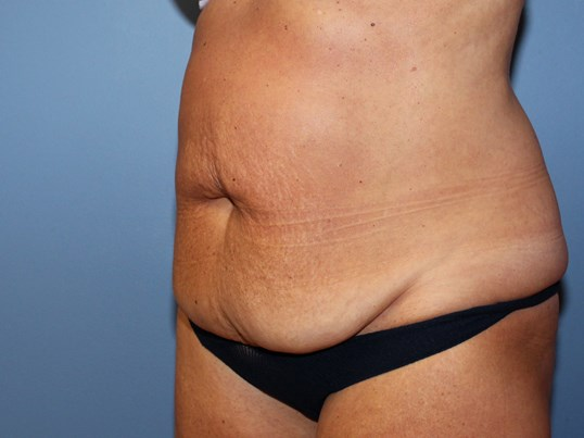Abdominoplasty oblique views Before