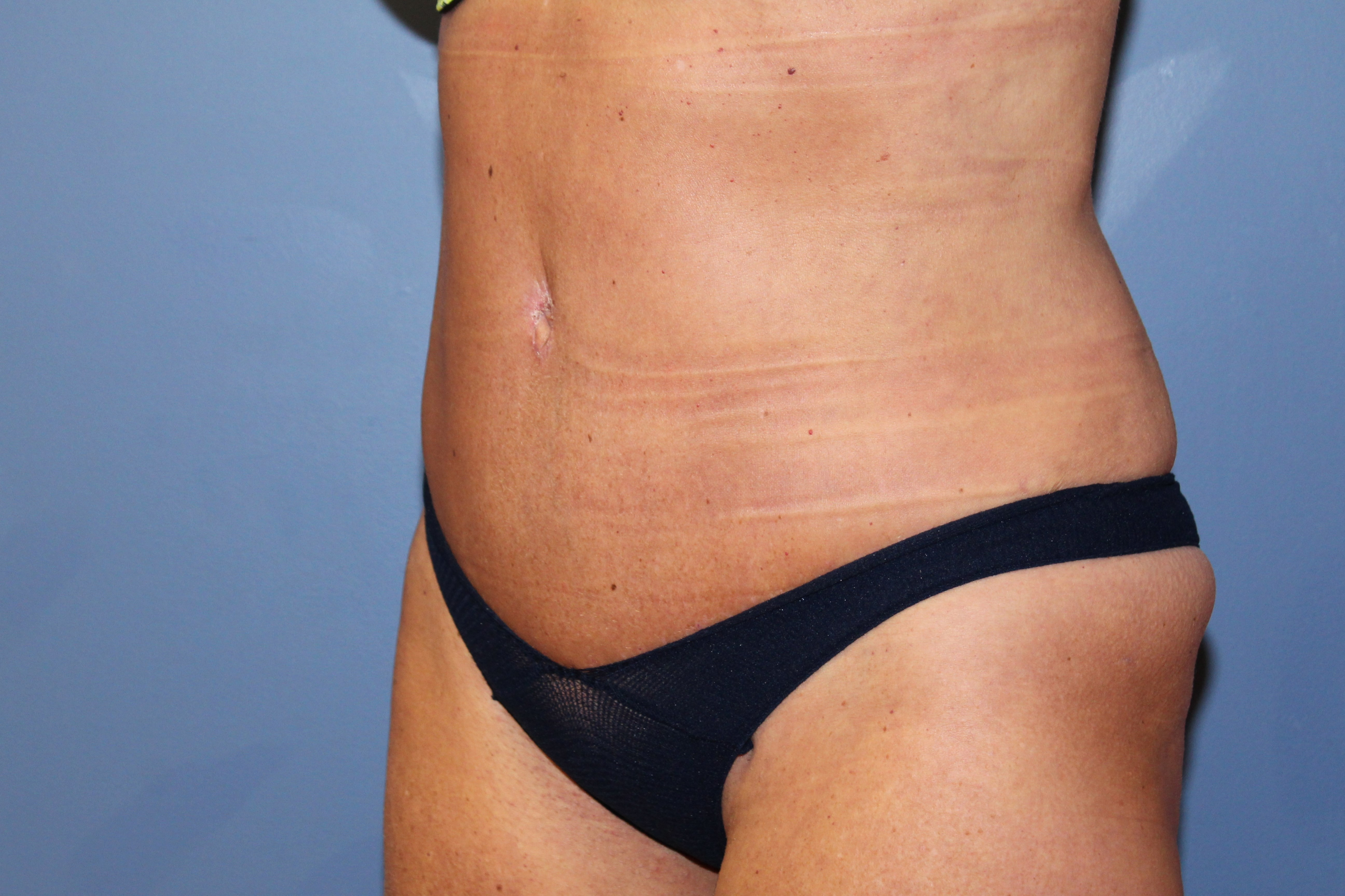 Abdominoplasty oblique views After
