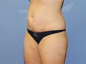 Tummy Tuck Before