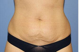 Abdominoplasty / Tummy Tuck Before