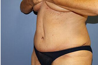 Abdominoplasty / Tummy Tuck After