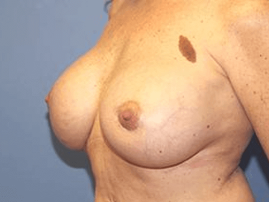 Breast Revision After