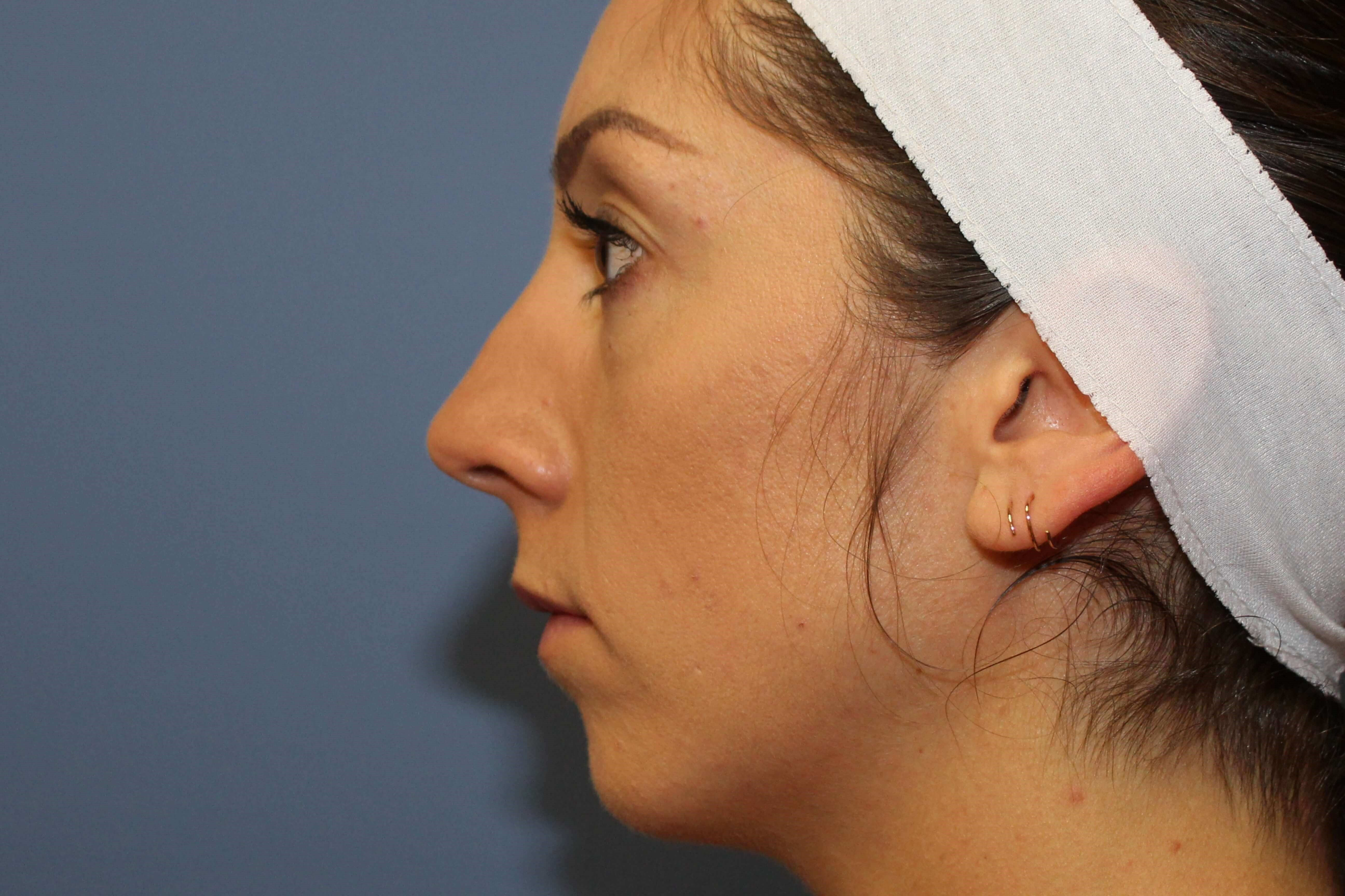 Rhinoplasty&Chin Augmentation Before