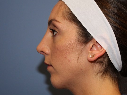 Rhinoplasty&Chin Augmentation After