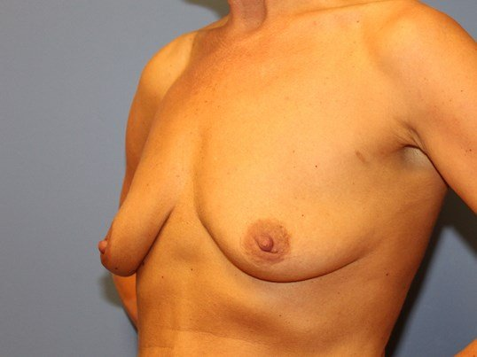 Breast augmentation/lift Before
