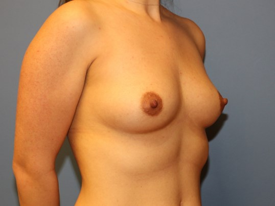 Oblique view breast implants Before