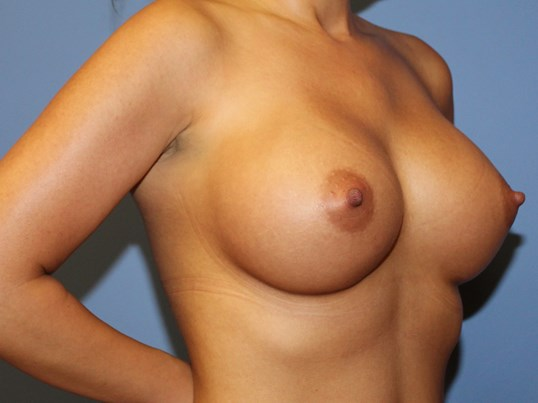 Oblique view breast implants After