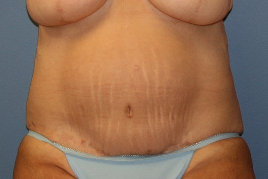 Abdominoplasty - weight loss After