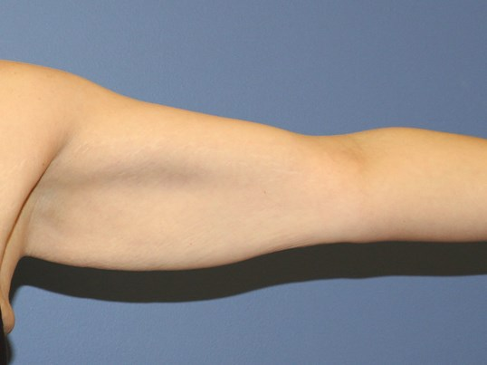 Brachioplasty ( arm lift) Before