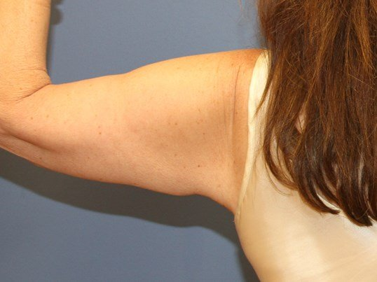 Brachioplasty ( arm lift) After