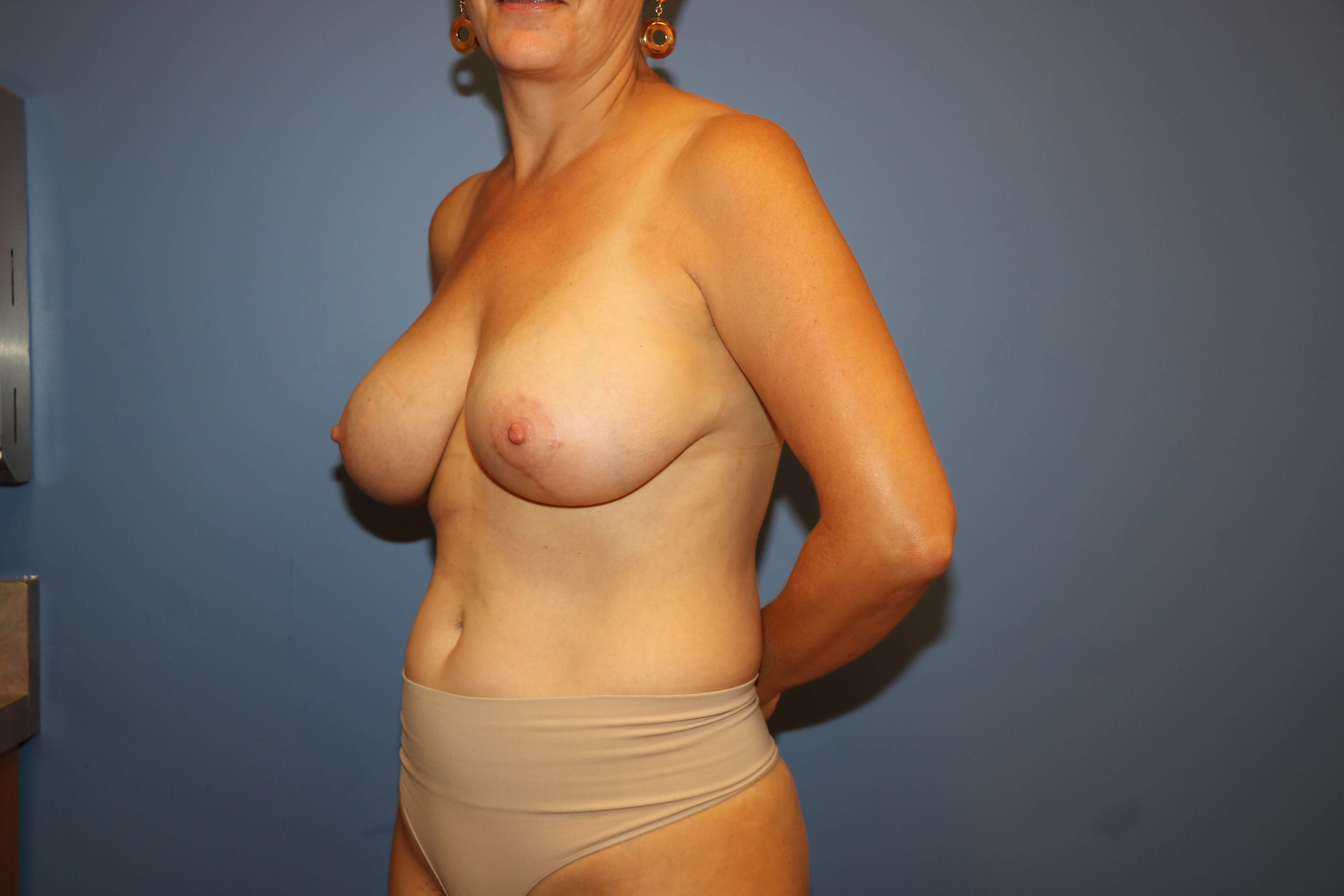 Breast Augmentation + Lift After