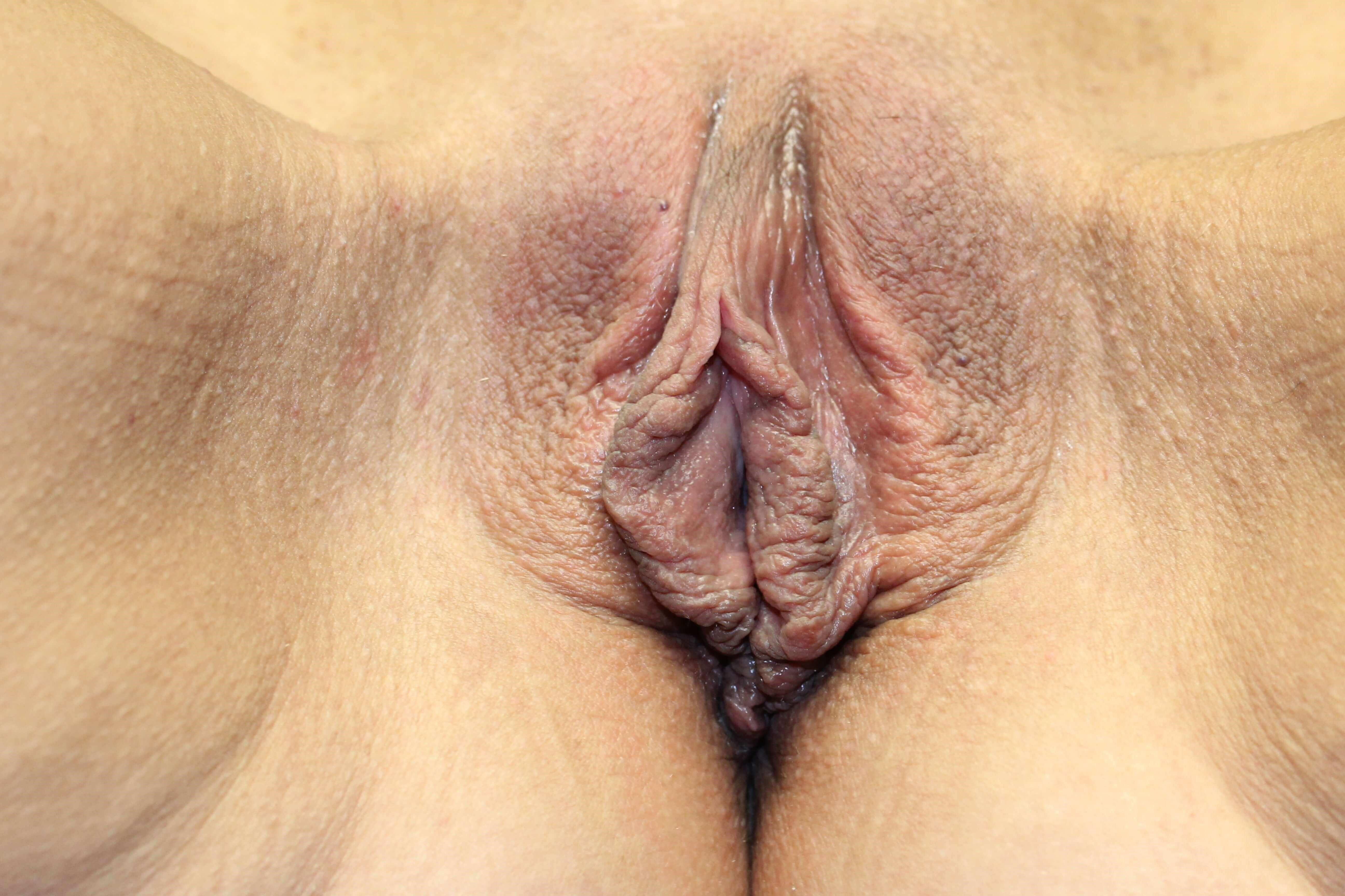Labiaplasty  Clitoral Hood After