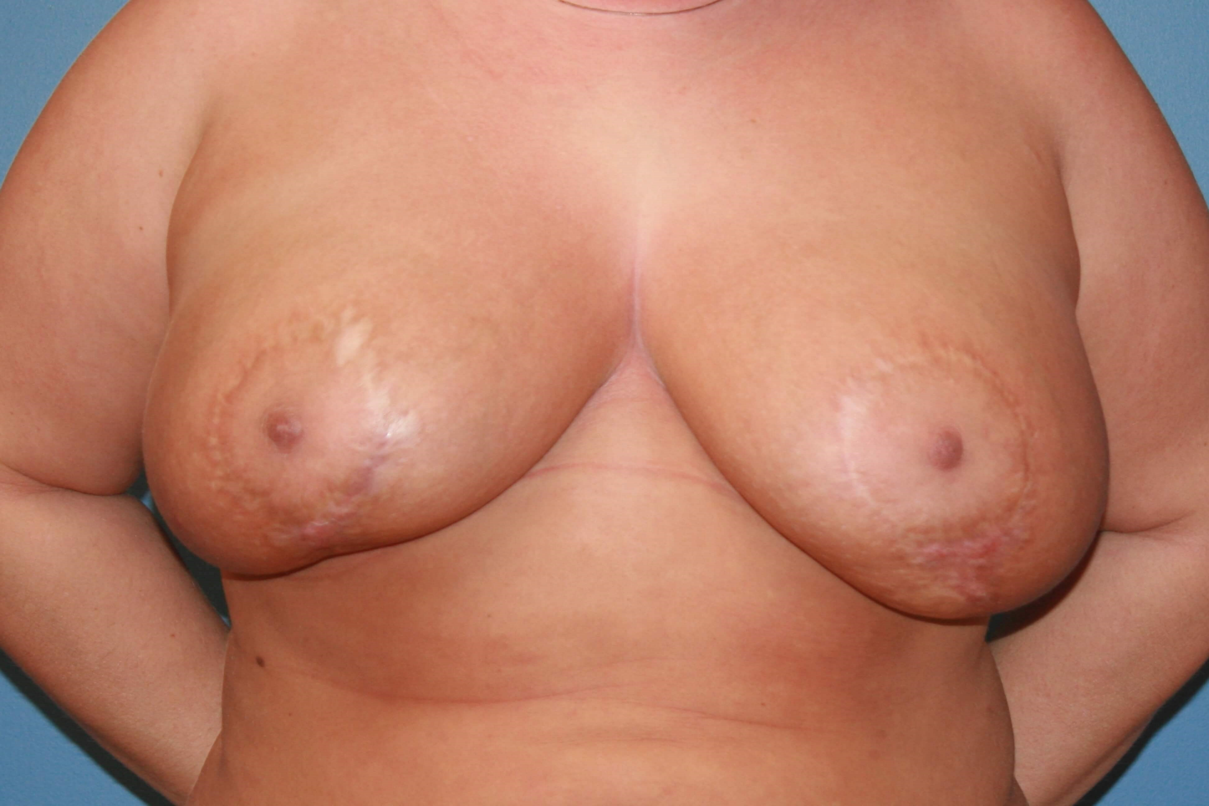 Implant removal and mastopexy Before