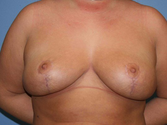 Implant removal and mastopexy After