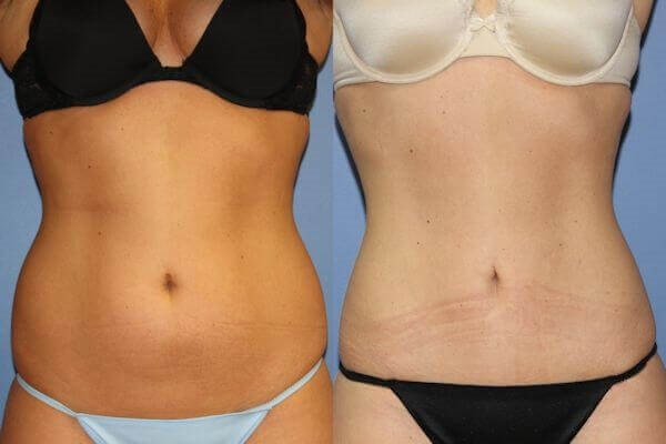 Mini Tummy Tuck (
