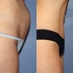 Abdominoplasty, blog