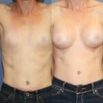 Breast aug 4 blurred