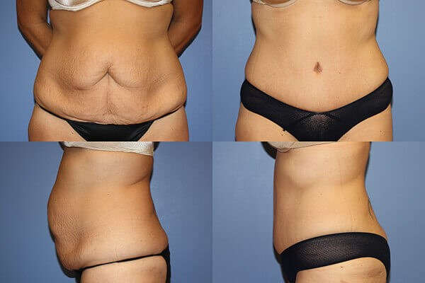 Before-and-after photos of a tummy tuck patient.