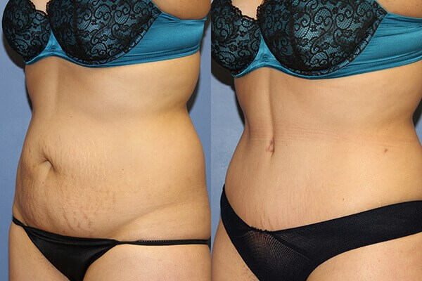 Before-and-after photos of a tummy tuck patient. Surgery by Dr. Francisco Canales and Dr. Heather Furnas