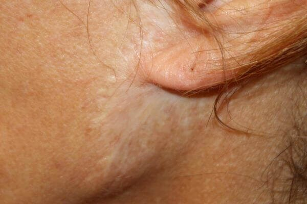 Facelift scar 2 to 3 cm wide after too much skin removed