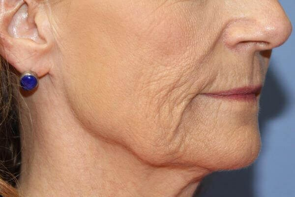 Lower face of Patient interested in facial rejuvenation