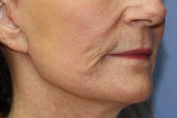 Lower face of Patient after facelift and laser resurfacing