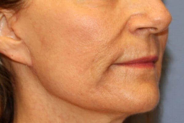Lower face of Patient after facelift, laser resurfacing, and fillers