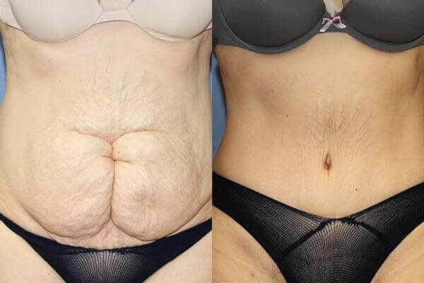 Tummy Tuck Correcting Vertical Scar