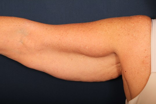 Arm Lift with Fat Excision Before