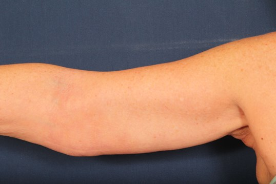 Arm Lift with Fat Excision After