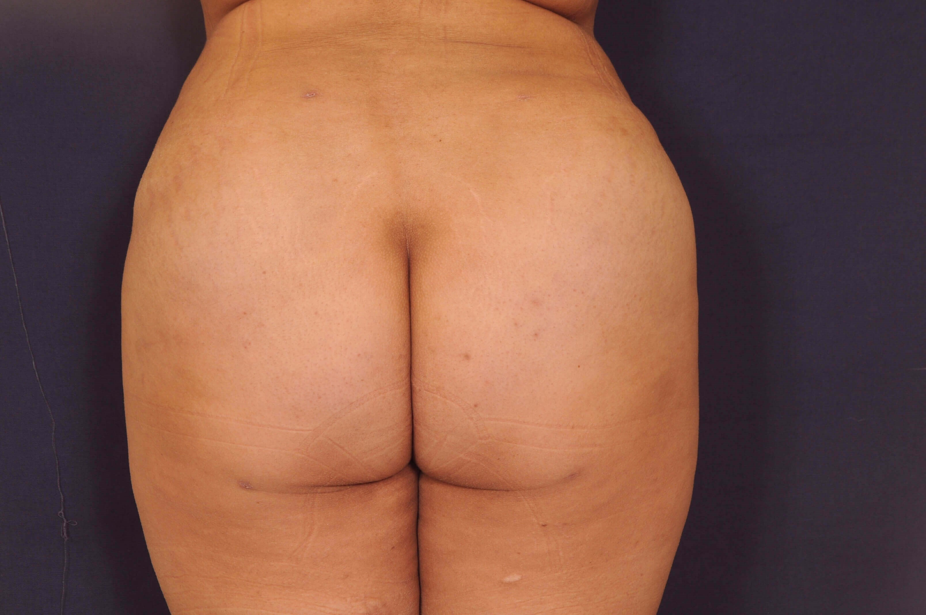 Liposuction with BBL After