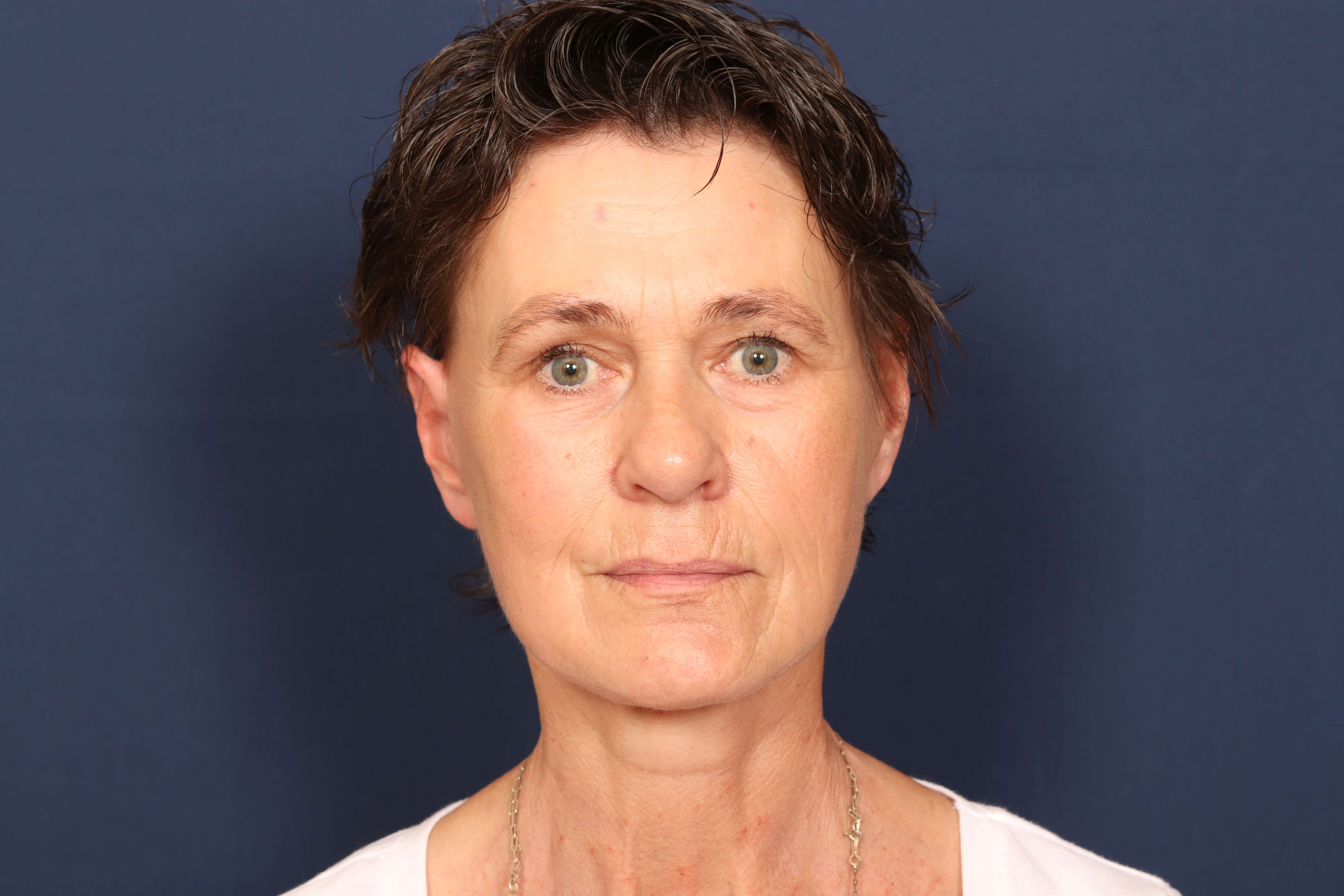 Facelift with Fat Injection After