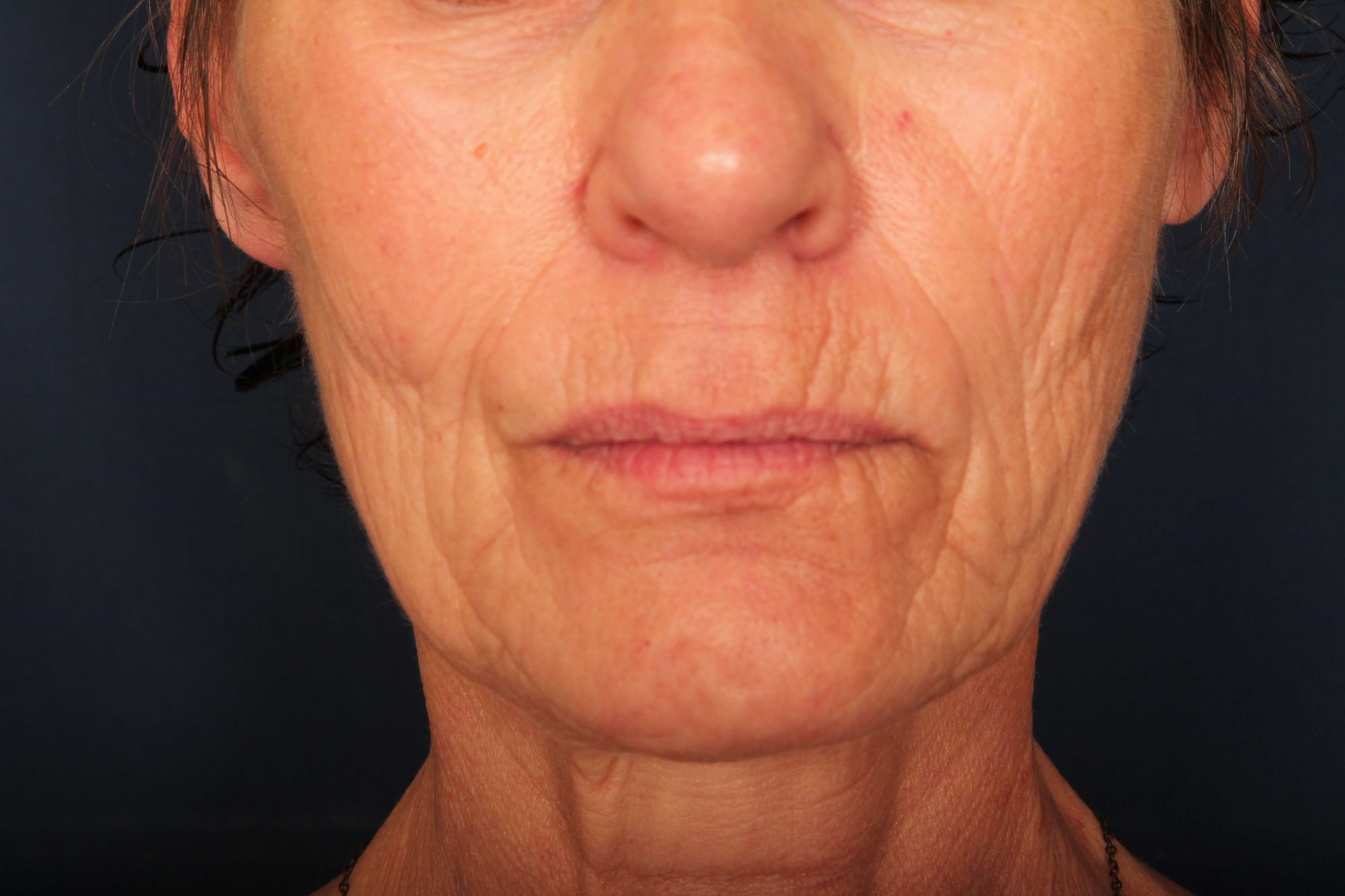 Facelift with Fat Injection Before
