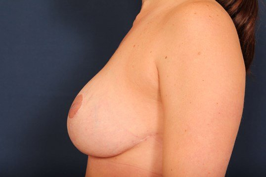 T-Mastopexy with Replacement After