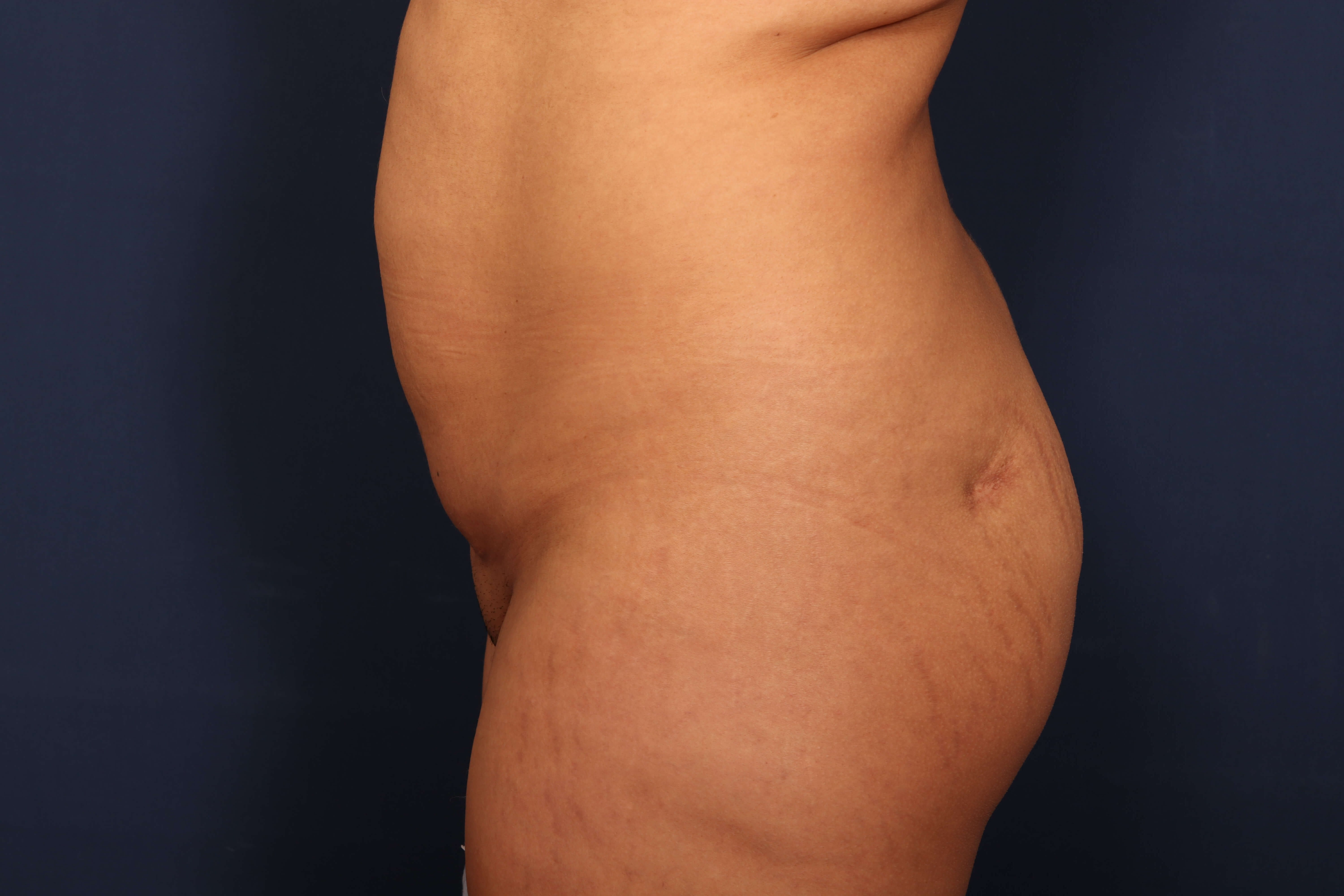 Liposuction with BBL Before