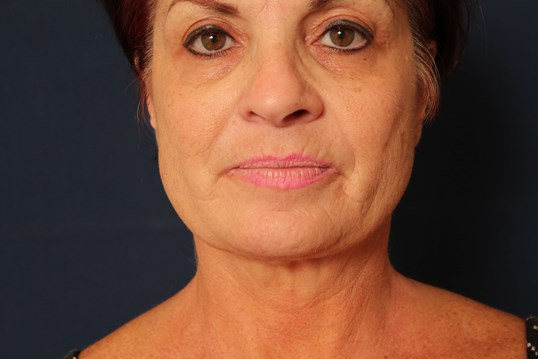 Facelift with Eyelid Lift Before
