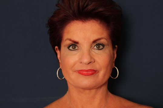 Facelift with Eyelid Lift After