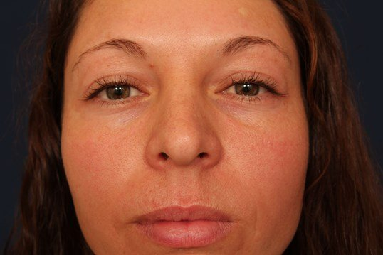Face Lift w/ Upper Eyelid Lift Before