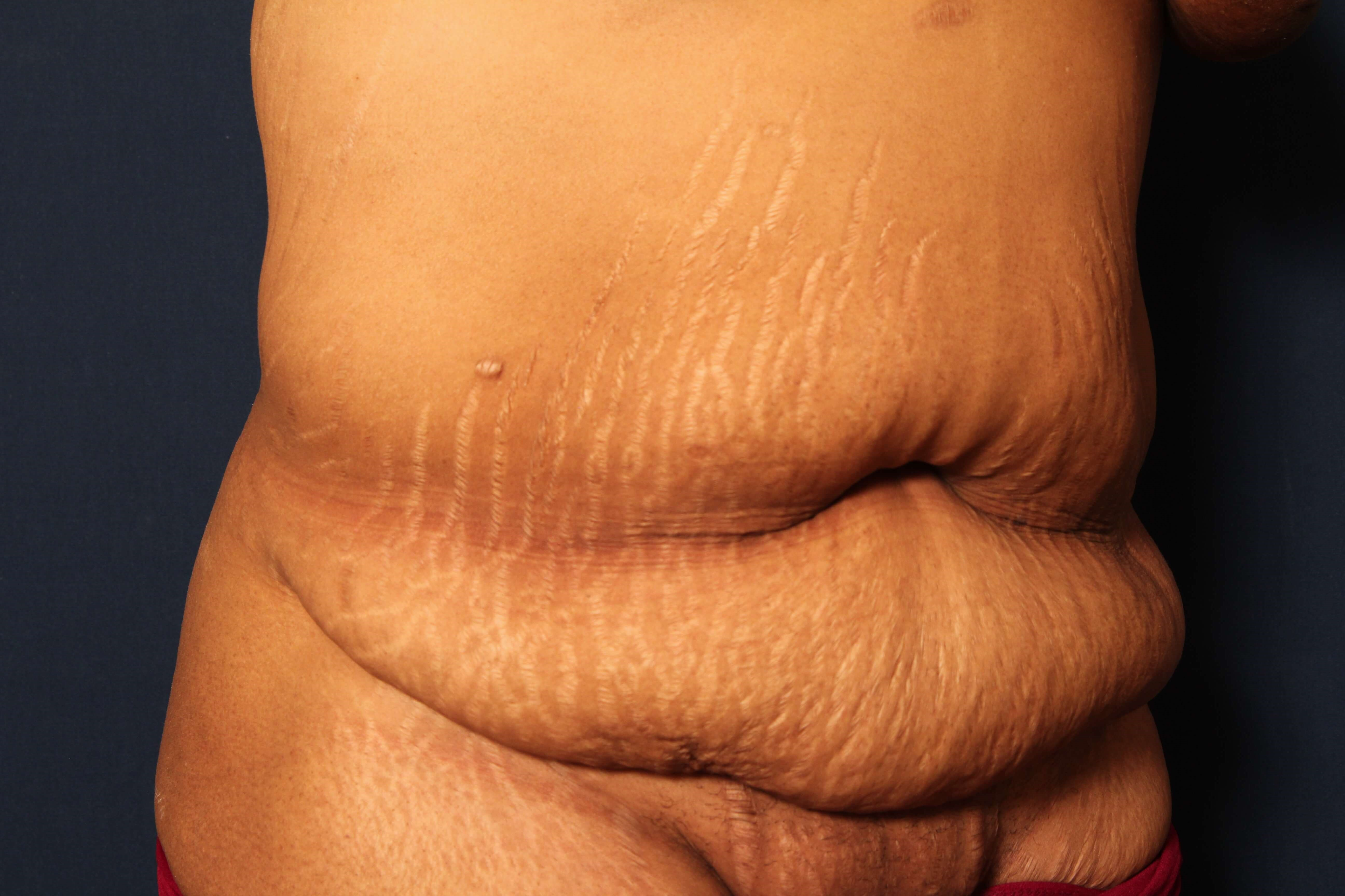 Tummy Tuck with Liposuction Before