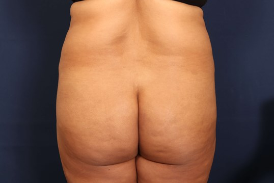 Before and After Lipo with BBL Before