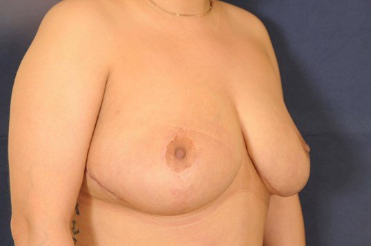 Breast Lift and Reduction After
