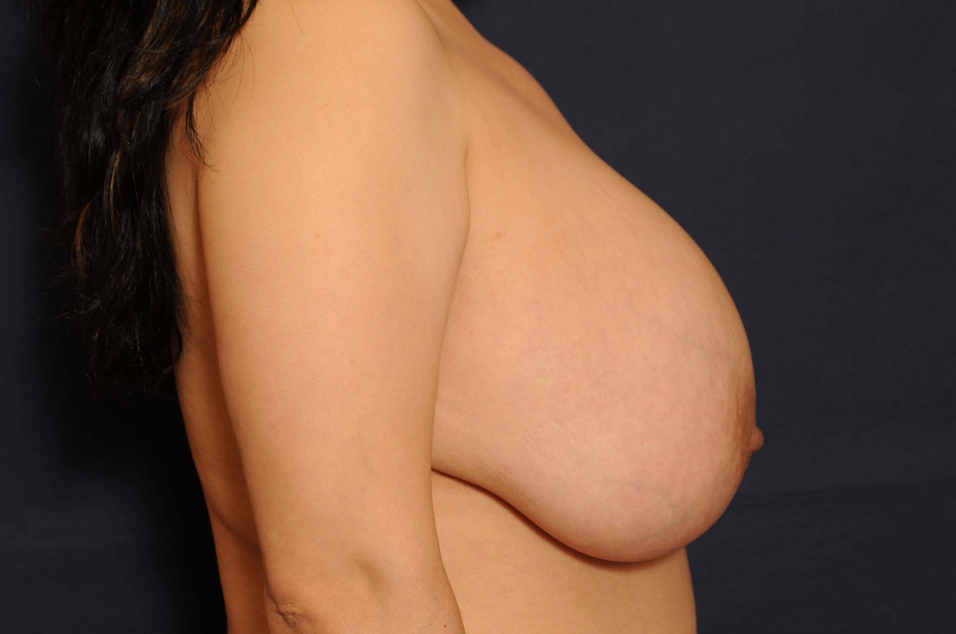 Breast Lift and Reduction Before