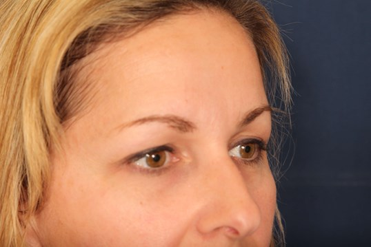 Brow Lift After