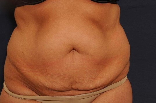 Tummy Tuck w/ Liposuction Before