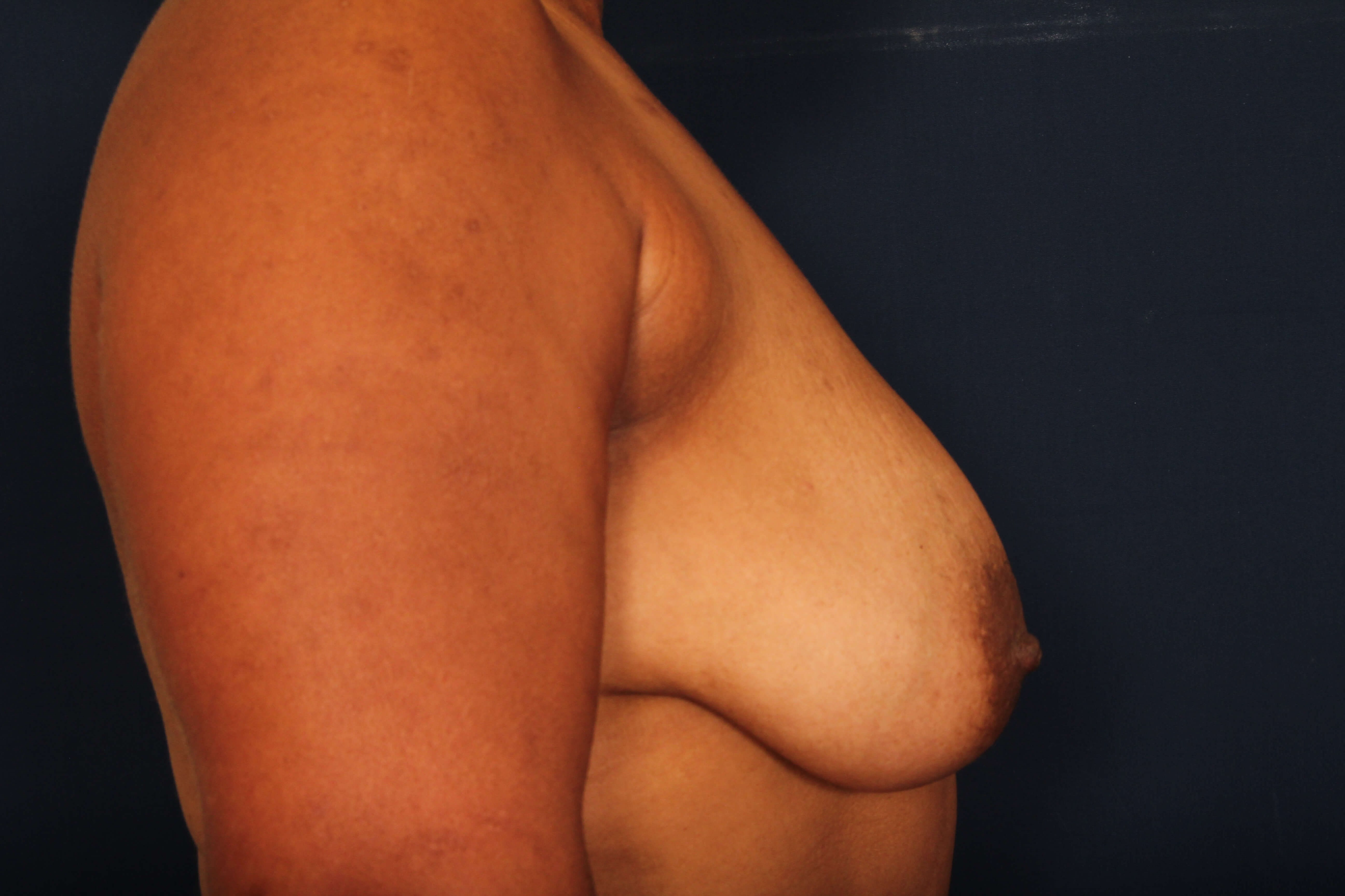Breast Lift w/ Saline Implants Before