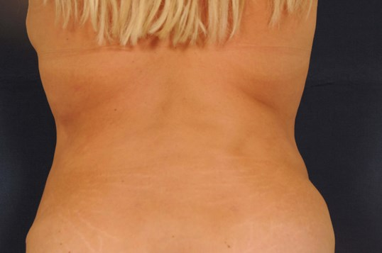 Tummy Tuck w/ Liposuction After