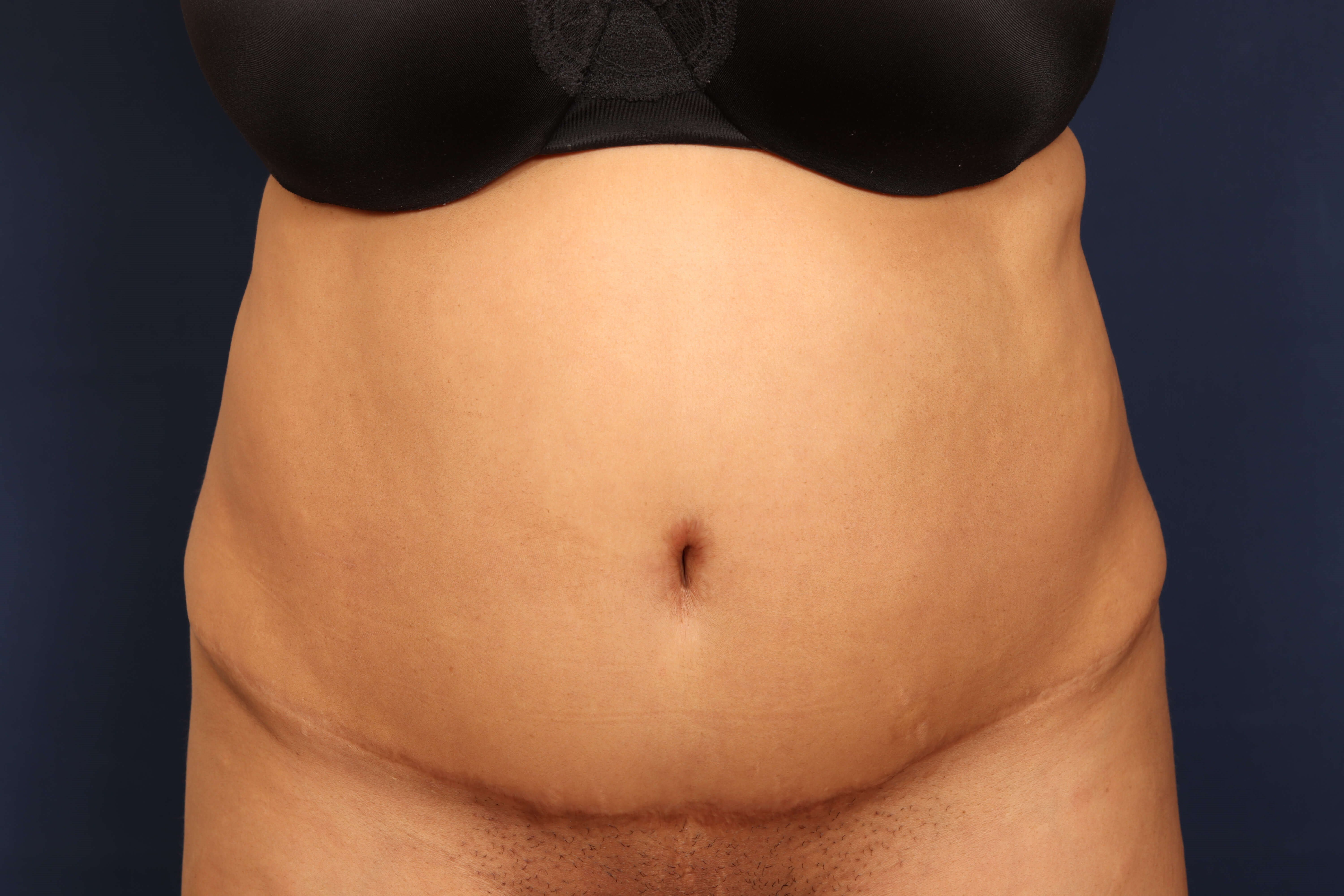 Liposuction Before